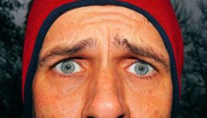 Łysienie plackowate - smutny mężczyzna